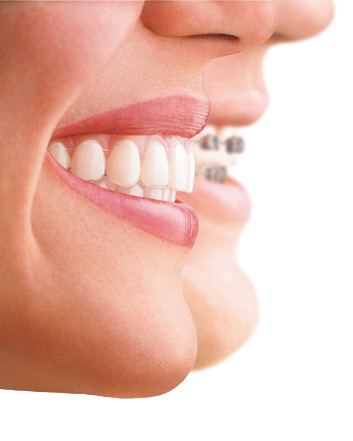 profiles-braces-aligner-jpg-format-colour